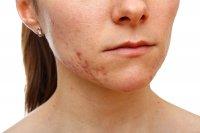chora skóra twarzy